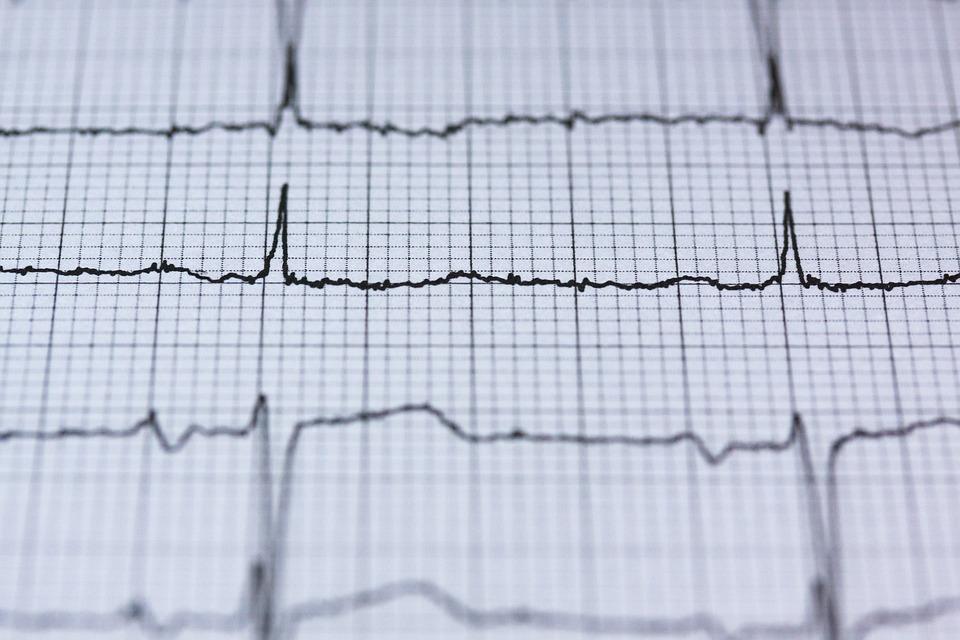 Ecg, Elektrocardiogram, Medische, Heartbeat, Hart