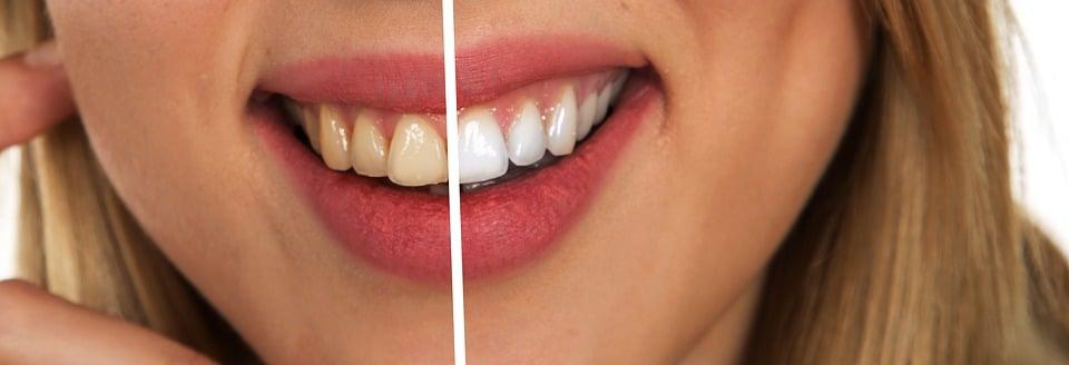 Tooth, Dental Care, White, White Teeth, Hygiene