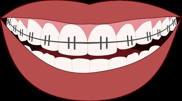 Ortodoncia, Úsmev, Zuby, Zubár