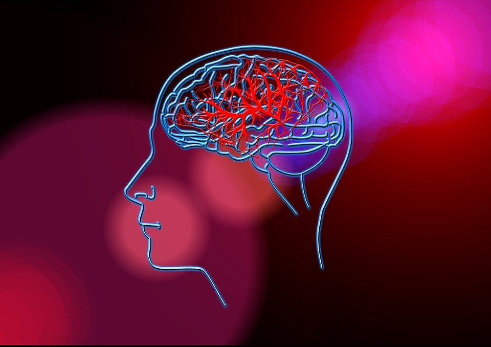 Stroke, Brain, Blood Circulation, Anatomy, Head