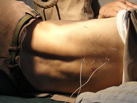 Acupuncture, Man, Needles, Therapy