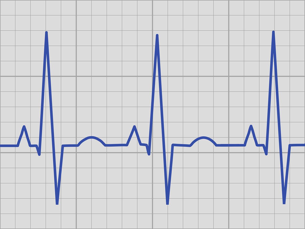 картинка кардиограмма большого размера