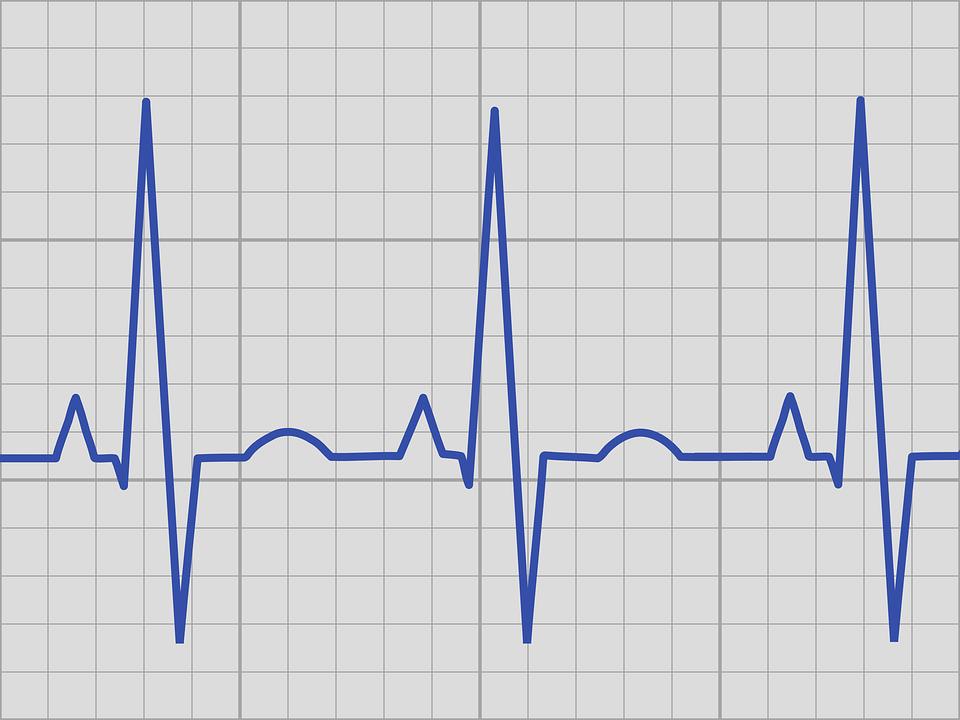 Электрокардиография (ЭКГ): задачи, показания, противопоказания, выполнение, расшифровка данных