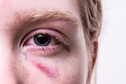 Trauma, Injured, Violent, Tear, Eyes Problem