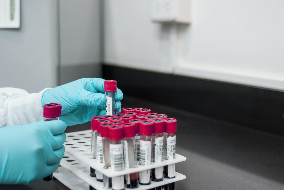 Laboratório, Experiência, Teste, Química