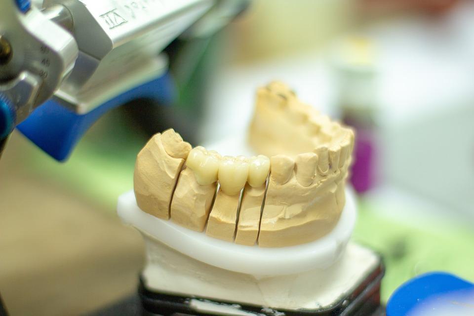 Стоматолог ортопед: кто это такой, что он делает, какие болезни лечит и когда к нему обращаются