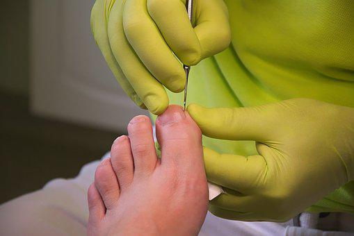 Foot Care, Podiatry, Treatment, Feet