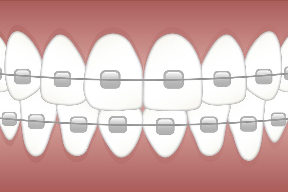 중괄호, 이빨, 치과 의사, 치과, 교정, 치아, 건강, 와이어, 치열 교정, 건강 한, 위생