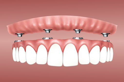 Overdenture, Implant, Retained