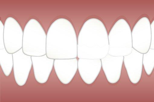 Dental, Fluorosis, Mottled, Teeth