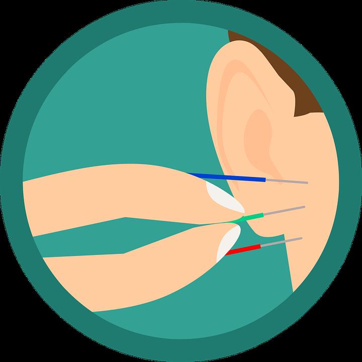 Acupunctuur, Oor, Naalden, Naald, Behandeling