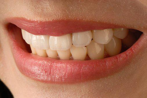 Asian Smile, Anterior Teeth, Veneer
