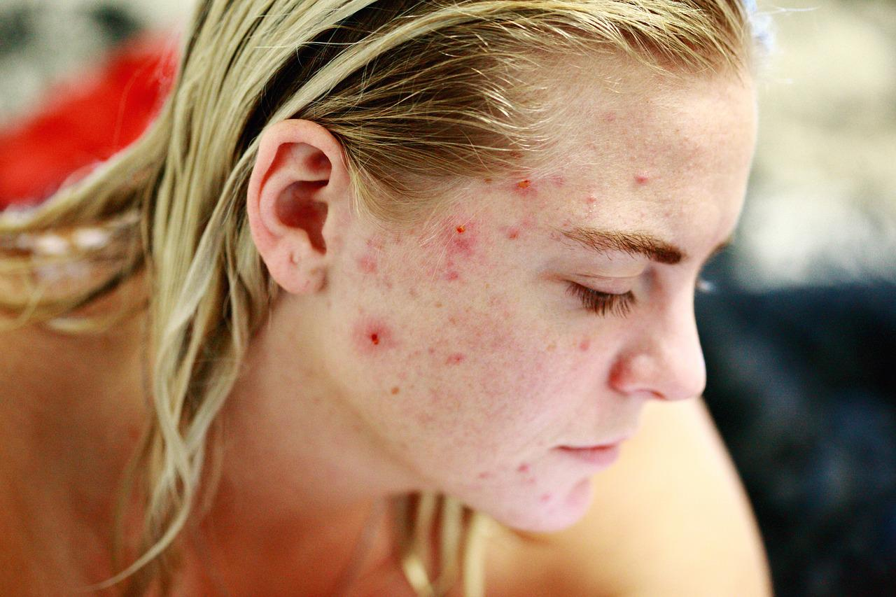 Assorted Skin Problems as well as How to Avoid Them