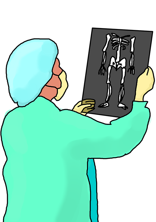 woman checking the xray result