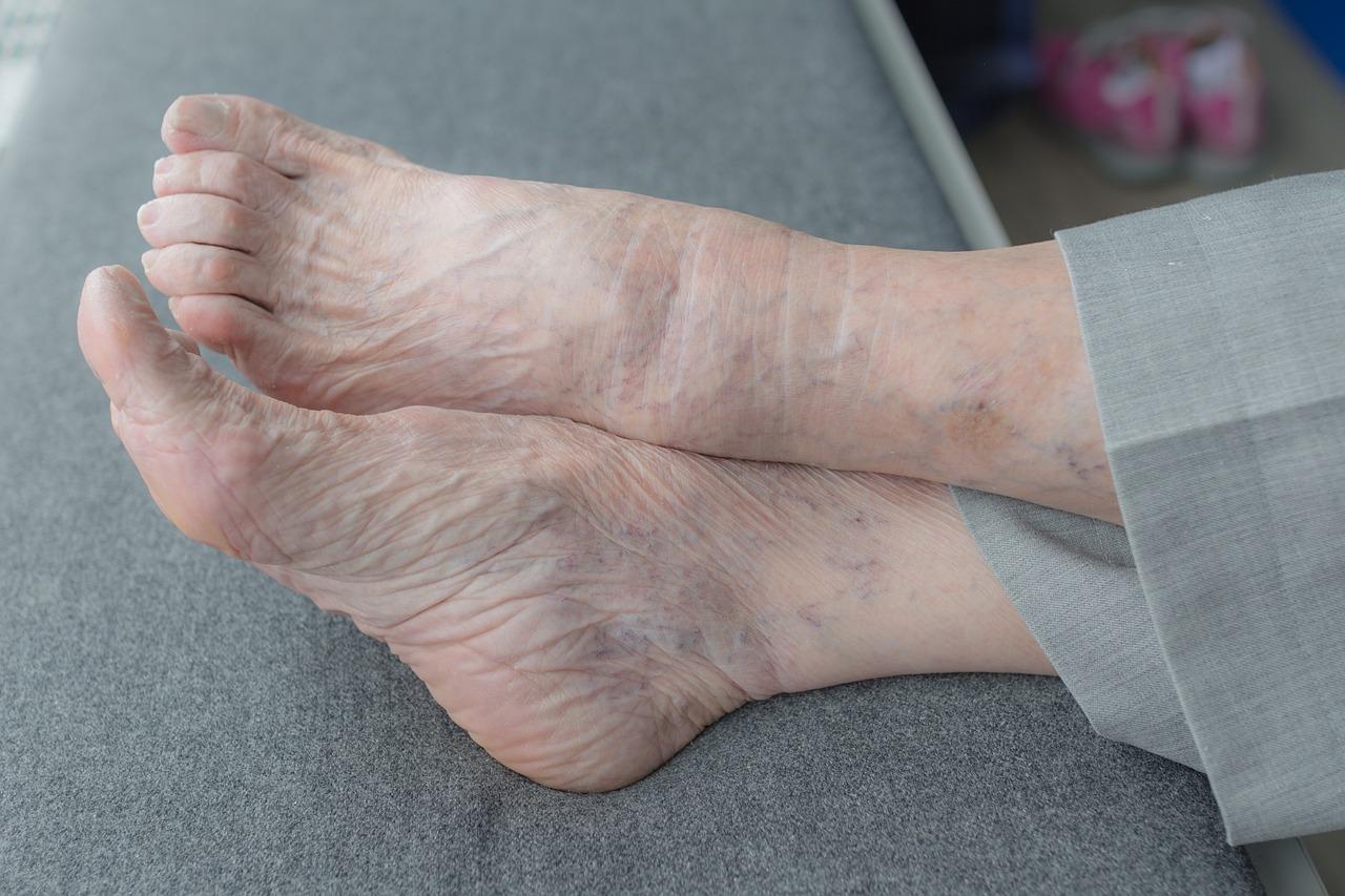 Wrinkled Soles Feet Foot Fetish   Dry cracked heel