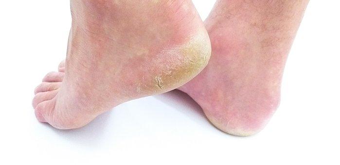 foot disease, callus, corn, foot problem