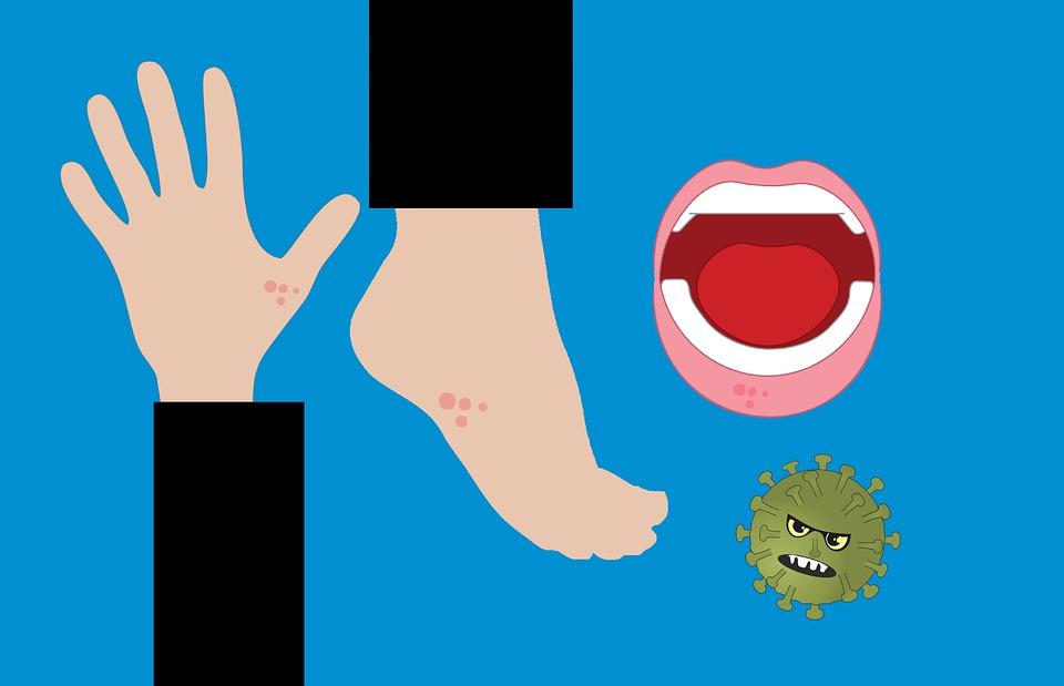 運動流汗後更容易造成過敏!汗疹、濕疹同時發作怎麼辦?