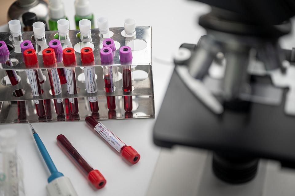 Vacina, Bioquímica, Máscara, Negativo, Paciente, Plasma