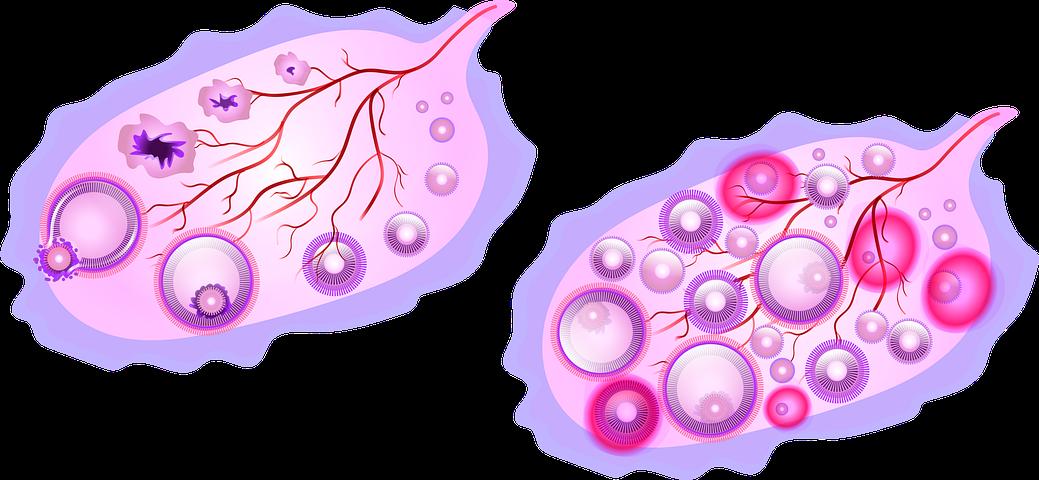 Ovary, Utero, Uterus, Polycystic Ovary, Polycystic Ovary Syndrome