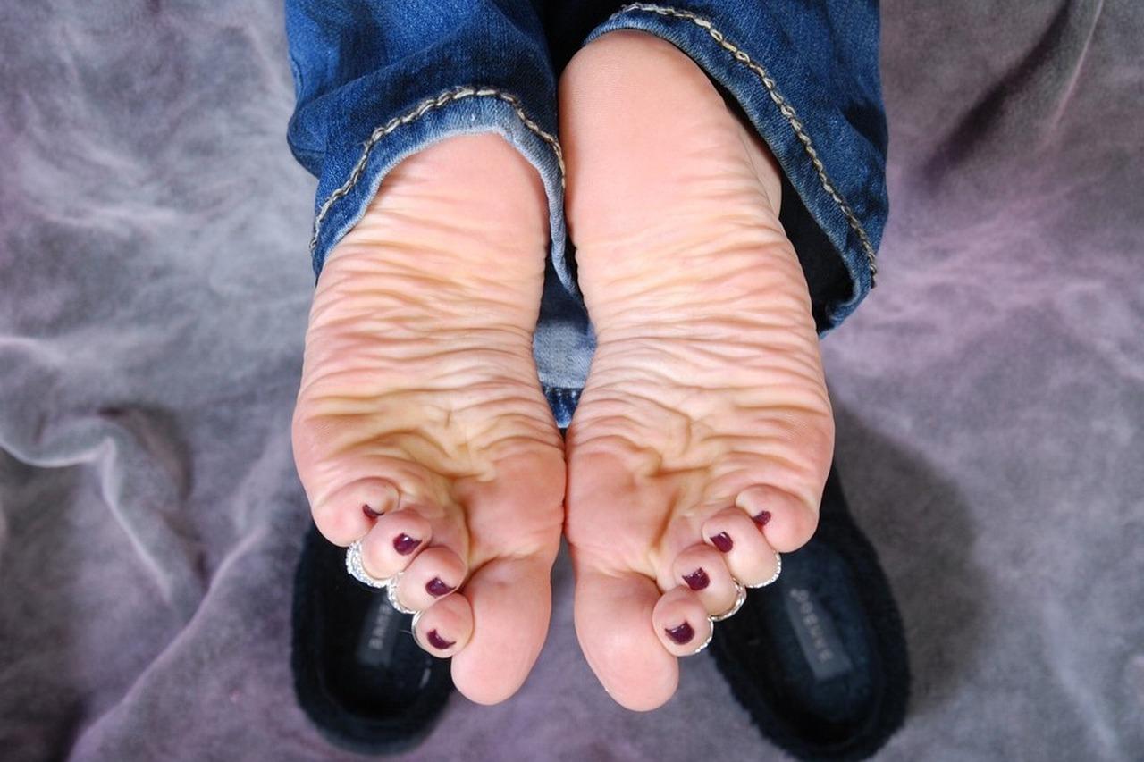 Wrinkled Soles Feet Foot   Dry Cracked Heel