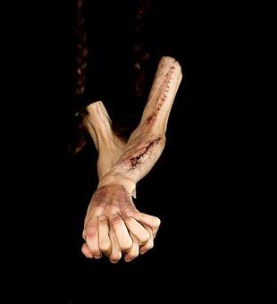 Ramiona, Ręce, Blizny, Samookaleczeń