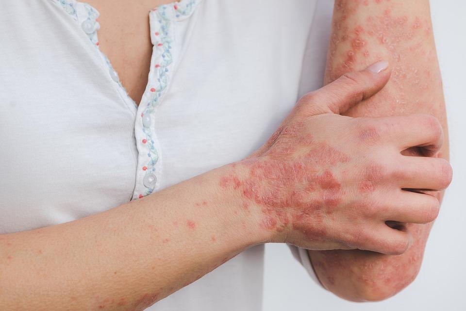 Psoriasis, Huid, Ziekte, Ontsteking, Geschubde