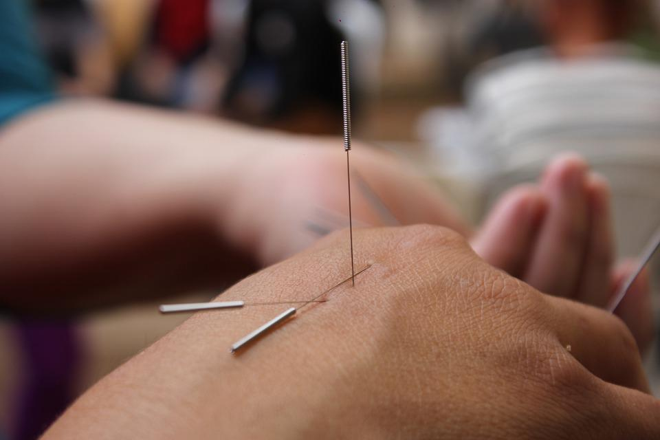 Acupuncture, Needles, Hand, Medicine, Physiotherapy